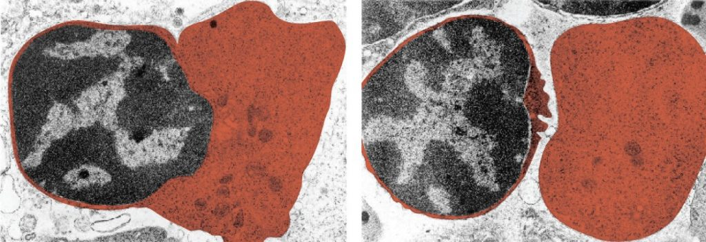 Red blood cell extruding its nucleus.