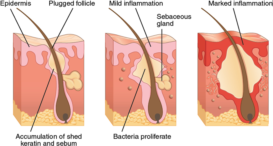 Diagram of acne production process