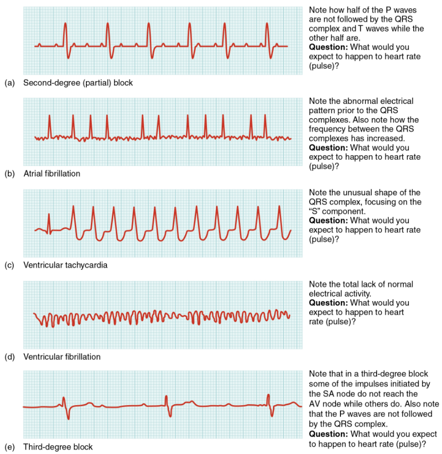 Figure 6.2.9. Common ECG abnormalities. (a) In a second-degree or partial block, one-half of the P waves are not followed by the QRS complex and T waves while the other half are. (b) In atrial fibrillation, the electrical pattern is abnormal prior to the QRS complex, and the frequency between the QRS complexes has increased. (c) In ventricular tachycardia, the shape of the QRS complex is abnormal. (d) In ventricular fibrillation, there is no normal electrical activity. (e) In a third-degree block, there is no correlation between atrial activity (the P wave) and ventricular activity (the QRS complex).