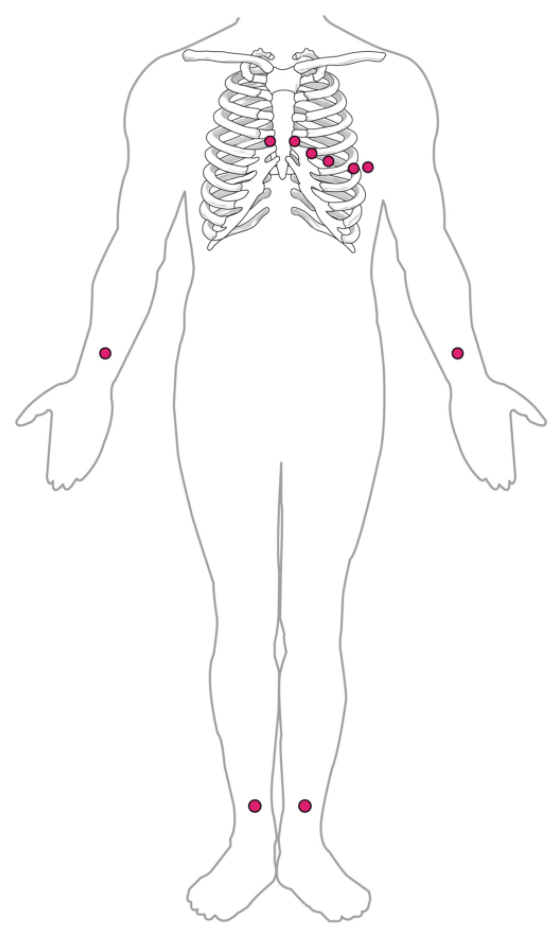 Standard placement of ECG leads.