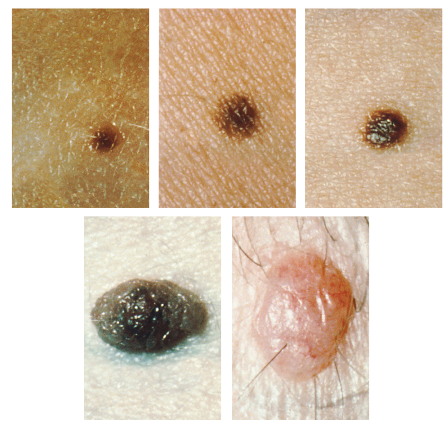 Photos of different types of moles