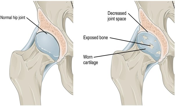 Diagram of Osteoarthritis