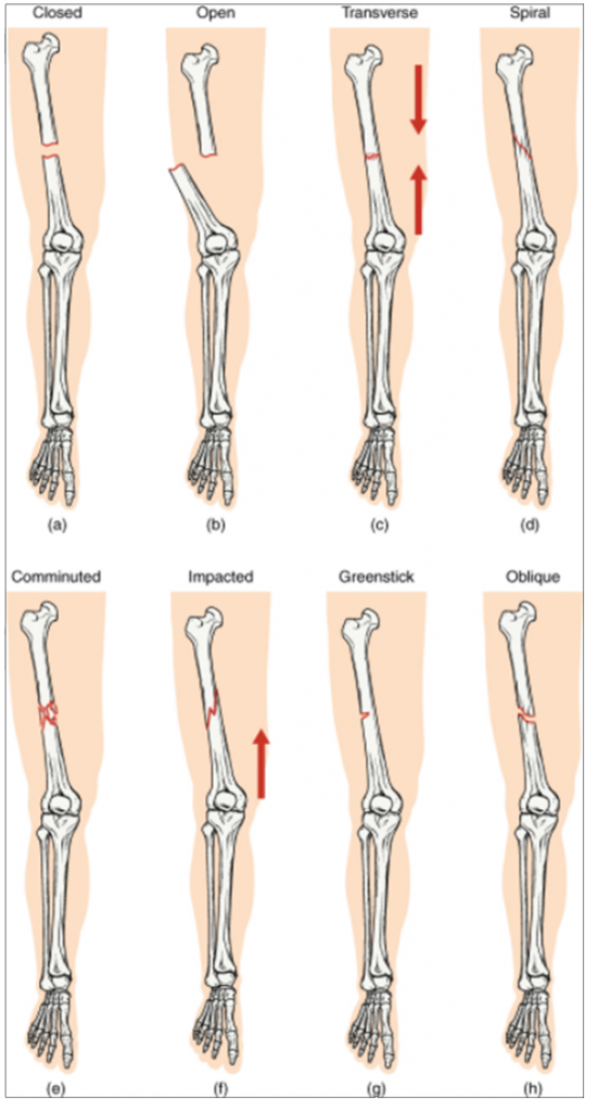 Types of fractures. Compare healthy bone with different types of fractures: (a) closed fracture, (b) open fracture, (c) transverse fracture, (d) spiral fracture, (e) comminuted fracture, (f) impacted fracture, (g) greenstick fracture, and (h) oblique fracture.