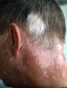 Photo of back of man's neck, showing vitligo, where there is different coloured patches of skin