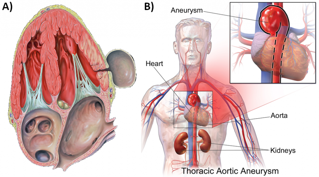 A) Pseudoaneurysm of the left ventricle, four-chamber echocardiography view B) Thoracic aortic aneurysm
