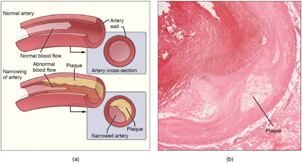 Diagram and image of Atherosclerosis