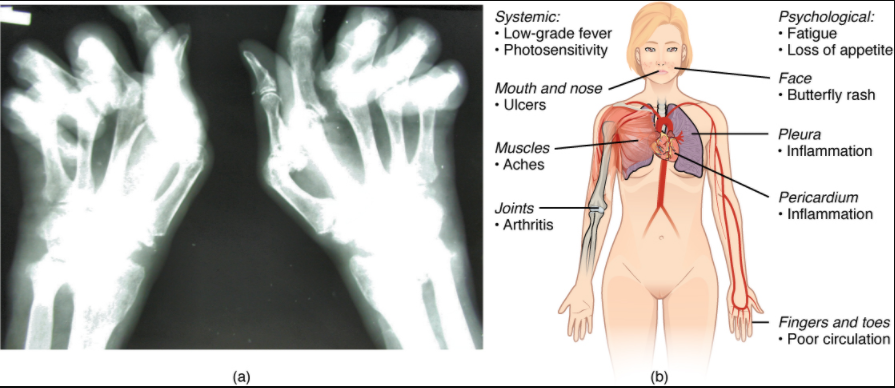 (a) Extensive damage to the right hand of a rheumatoid arthritis sufferer is shown in the x-ray. (b) The diagram shows a variety of possible symptoms of systemic lupus erythematosus.