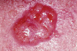 Image of Basal cell carcinoma