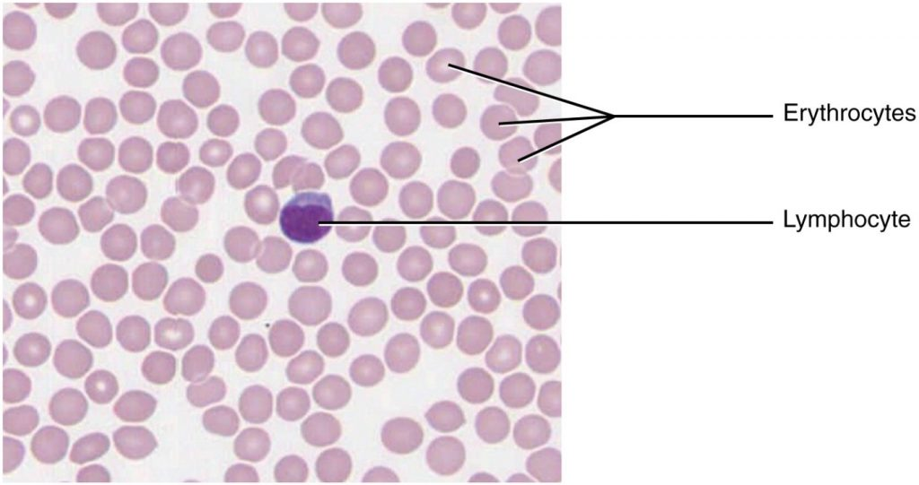 Image of blood