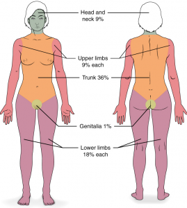 Diagram of human body split into percentages to calculate size of burns