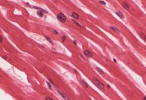Cardiac muscle tissue.