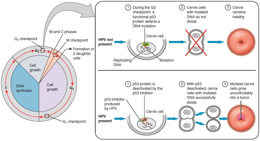 diagram of Development of cervical cancer