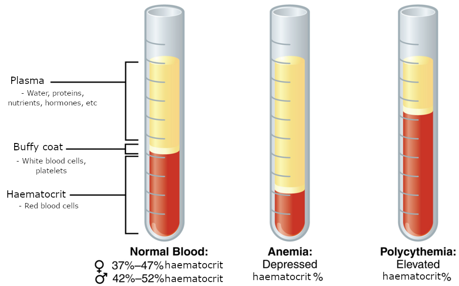 Three viles of blood. One reprsenting normla blood, one representing anemia and one polcyhemia