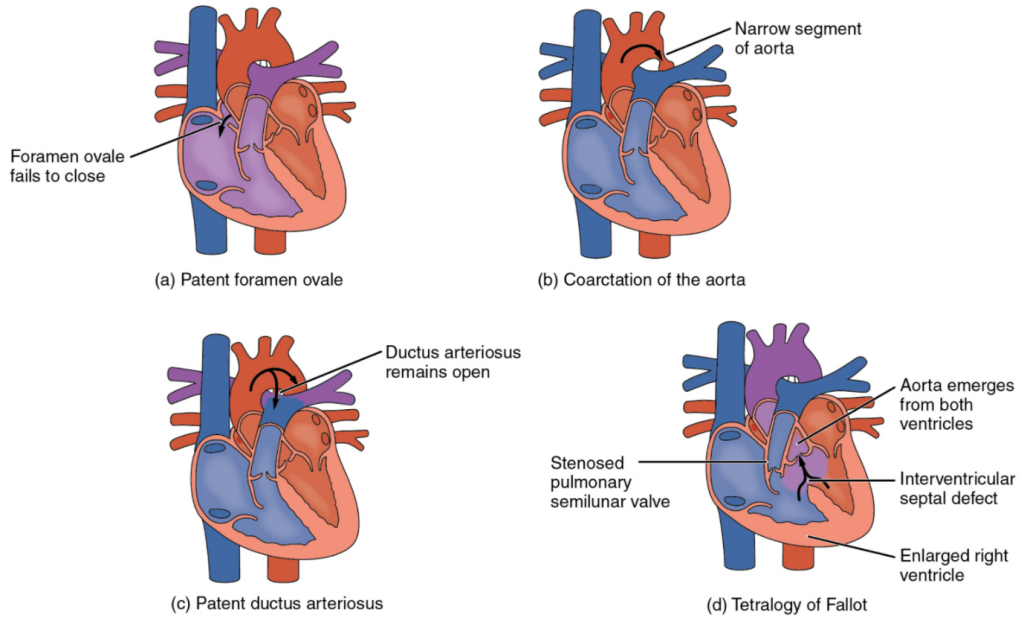 Diagram Congenital heart defects