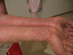 eczema on arms