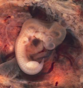 Embryo at seven weeks