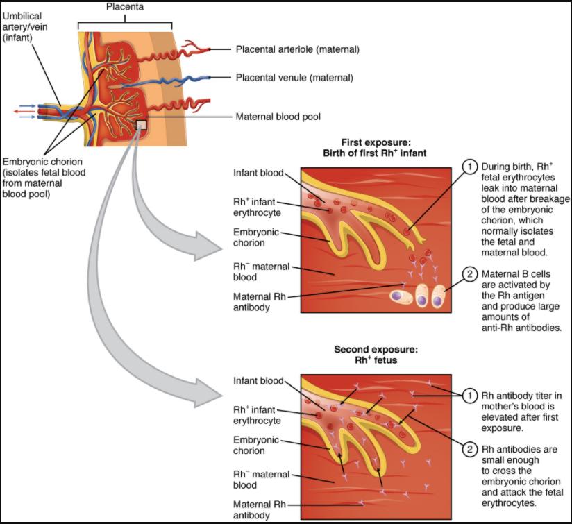 Diagram of Erythroblastosis fetalis