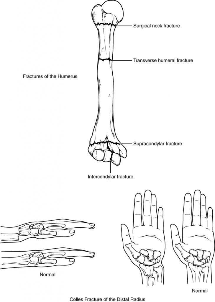 Diagram of Fractures of the humerus and radius
