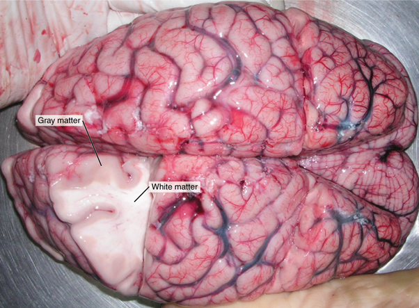 A brain removed during an autopsy, with a partial section removed, shows white matter surrounded by grey matter