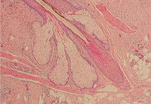 Cell image of hair follicle