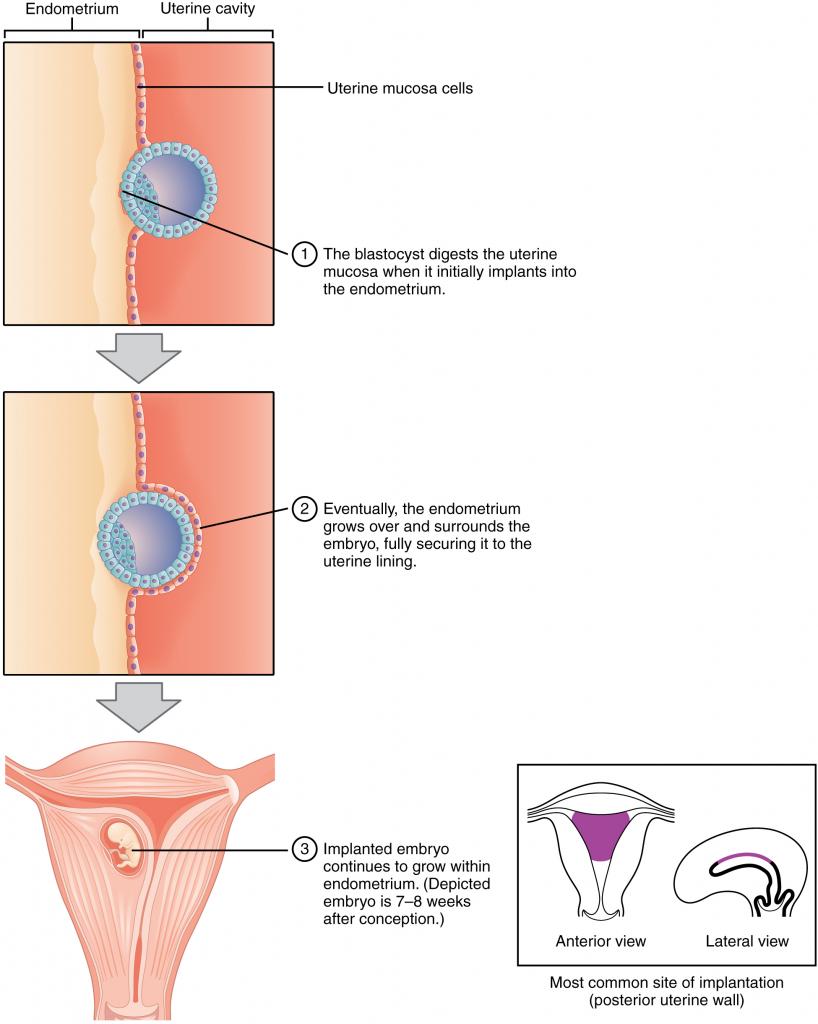 Diagram of implantation