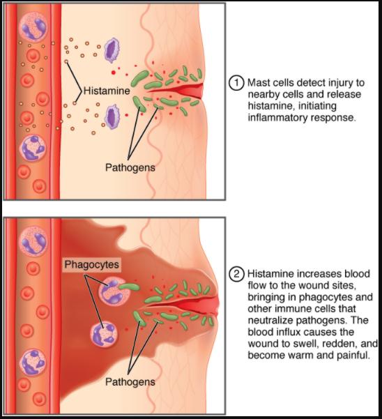 Daiagram of an inlammatory response