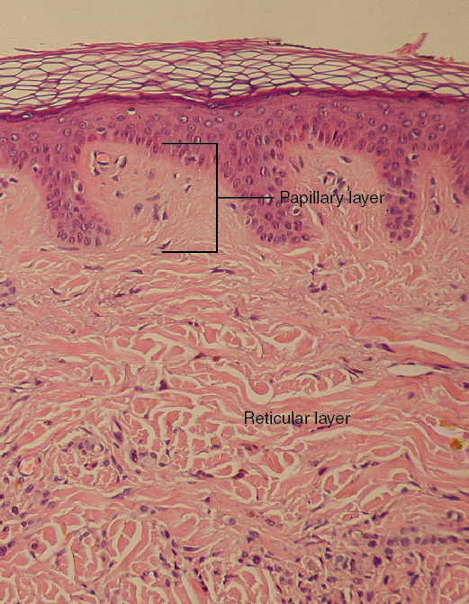 Diagram of layers of the dermis