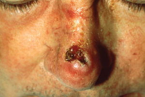 Lesion on person's nose