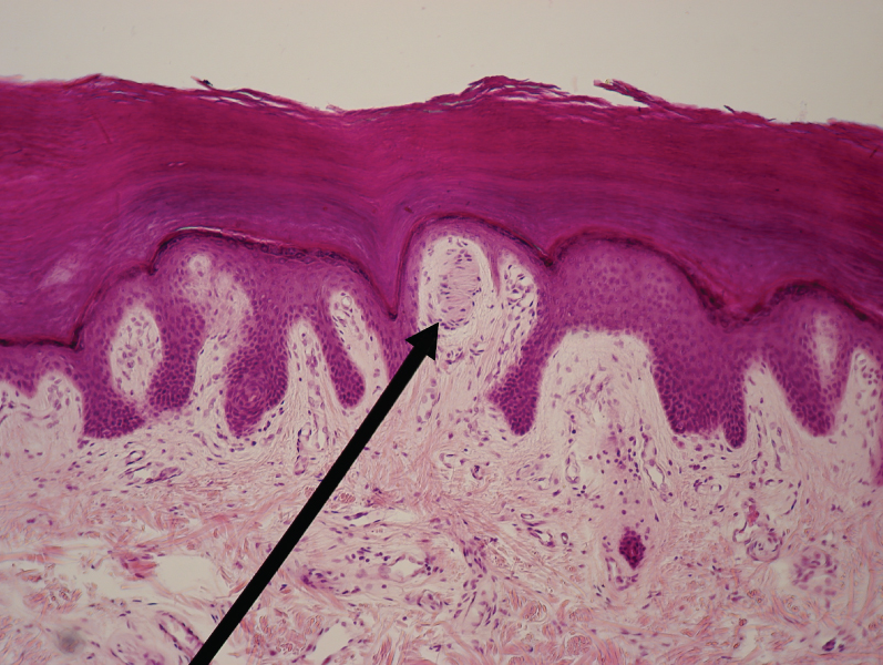 Light micrograph of a Meissner corpuscle