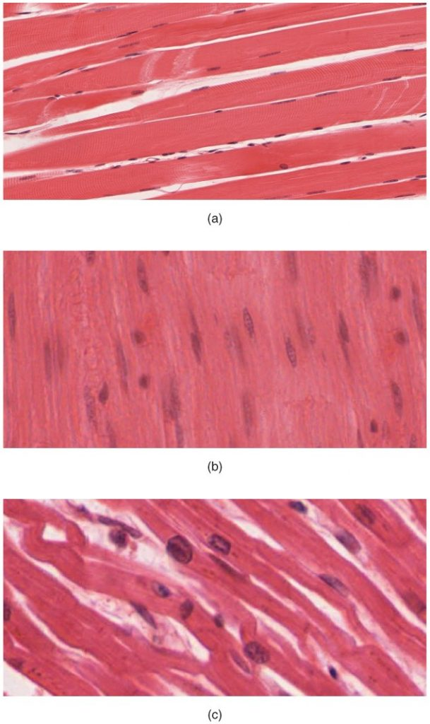 Photos of muscle tissue