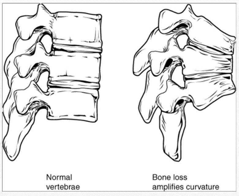 Diagram of normal vertbrae and bone loss