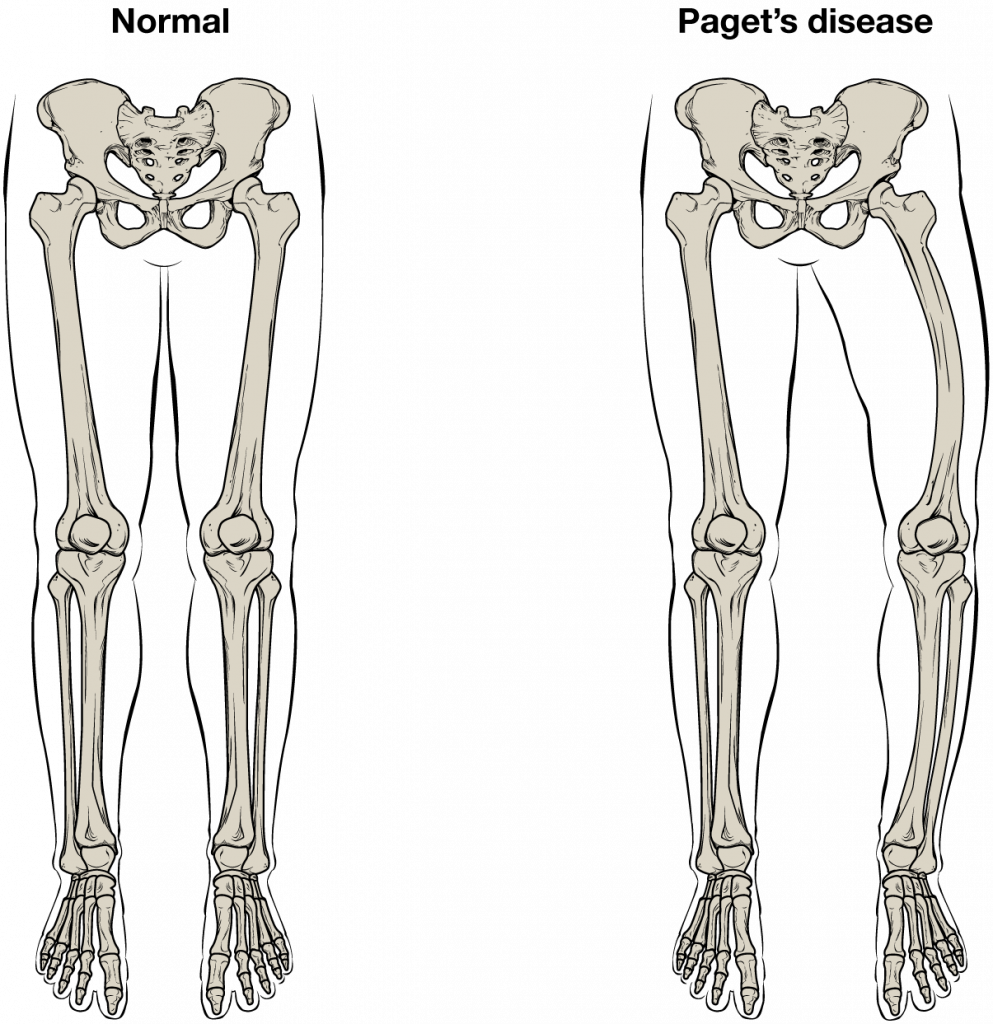 Normal bone vs paget disease bones