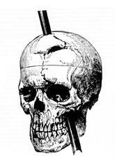 rod impaled through skull