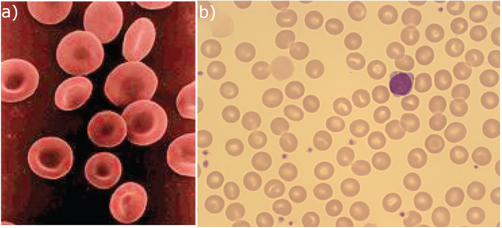 Images that show the shape of red blood cells