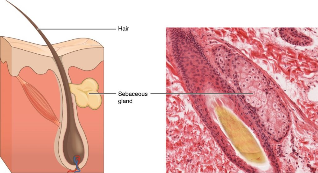 Diagram and image of sebaceous glands