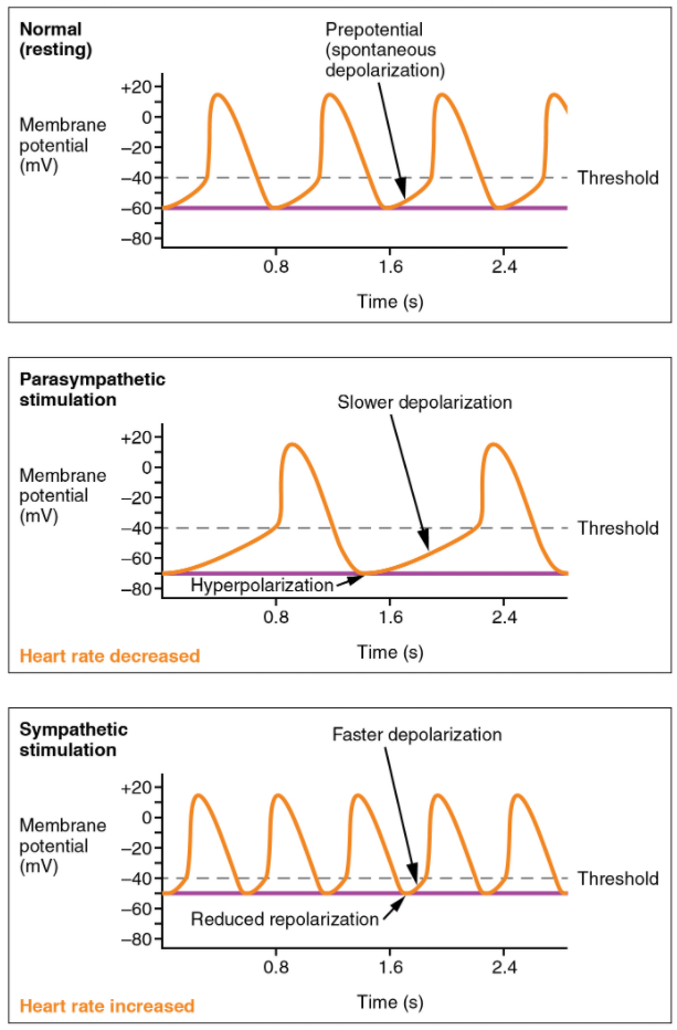 Graph on Effects of parasympathetic and sympathetic stimulation on normal sinus rhythm.