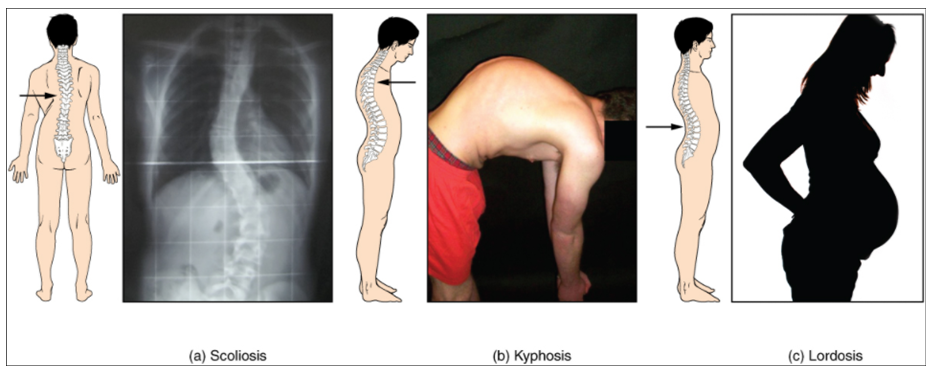 Photos of abnormal curvatures of the vertebral column (a) Scoliosis is an abnormal lateral bending of the vertebral column. (b) An excessive curvature of the upper thoracic vertebral column is called kyphosis. (c) Lordosis is an excessive curvature in the lumbar region of the vertebral column.
