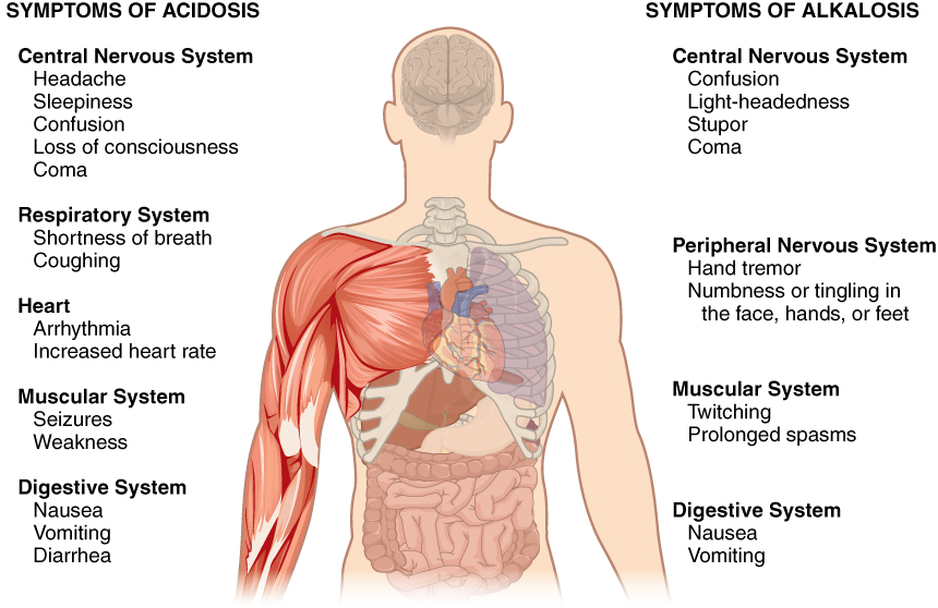 Symptoms of acidosis and alkalosis in diagram