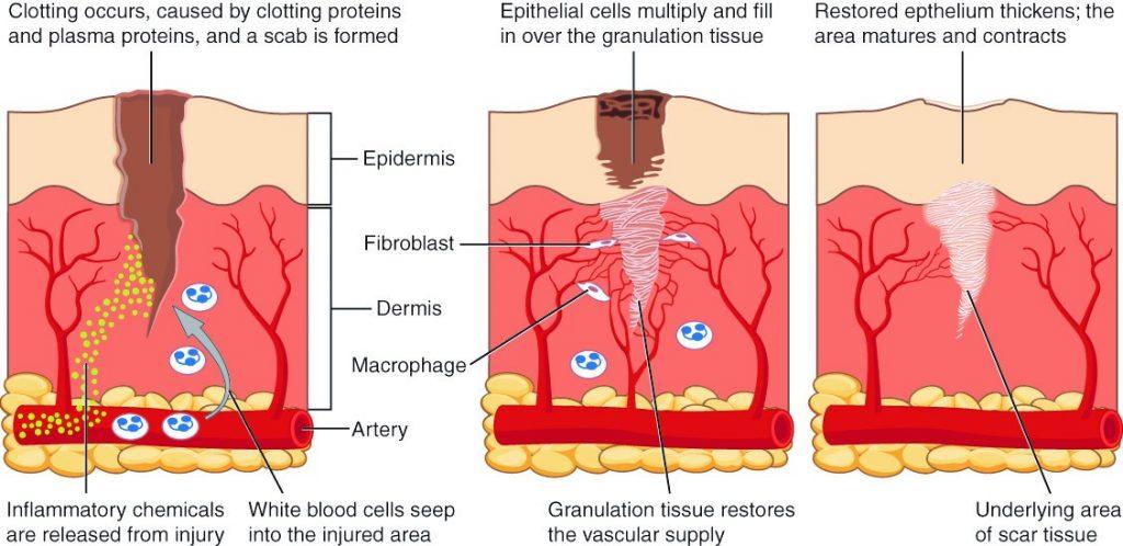 Diagram of healing tissue