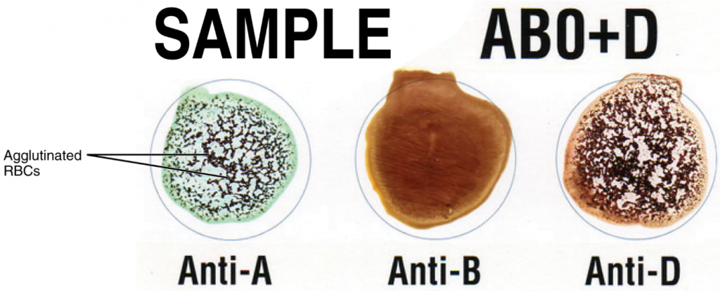 "This sample of a commercially produced ""bedside"" card enables quick typing of both a recipient's and donor's blood before transfusion. The card contains three reaction sites or wells. One is coated with an anti-A antibody, one with an anti-B antibody, and one with an anti-D antibody. Mixing a drop of blood and saline into each well enables the blood to interact with a preparation of type-specific antibodies, also called anti-sera. Agglutination of RBCs in a given site indicates a positive identification of the blood antigens, in this case A and Rh(D) antigens for blood type A+. For the purpose of transfusion, the donor's and recipient's blood types must be compatible: the donor's RBC must not express antigens that will react with antibodies in the patient's plasma."
