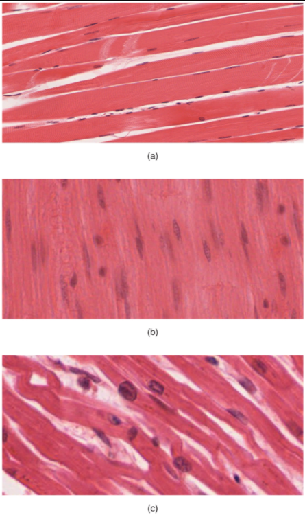 Three images of types of muscle tissue