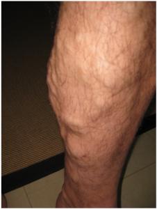 Photo of varicose veins on legs
